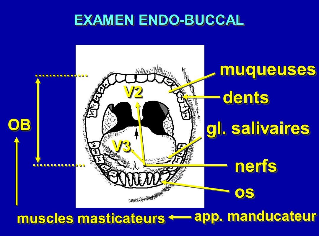 dentsdents muqueusesmuqueuses gl. salivaires V3V3 V2V2 OBOB EXAMEN ENDO-BUCCAL nerfsnerfs app. manducateur muscles masticateurs osos