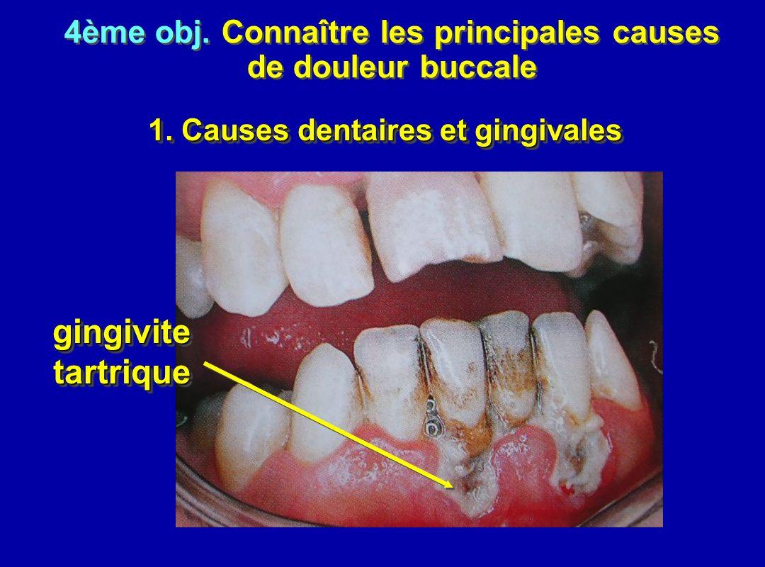 1. Causes dentaires et gingivales 4ème obj. Connaître les principales causes de douleur buccale 4ème obj. Connaître les principales causes de douleur