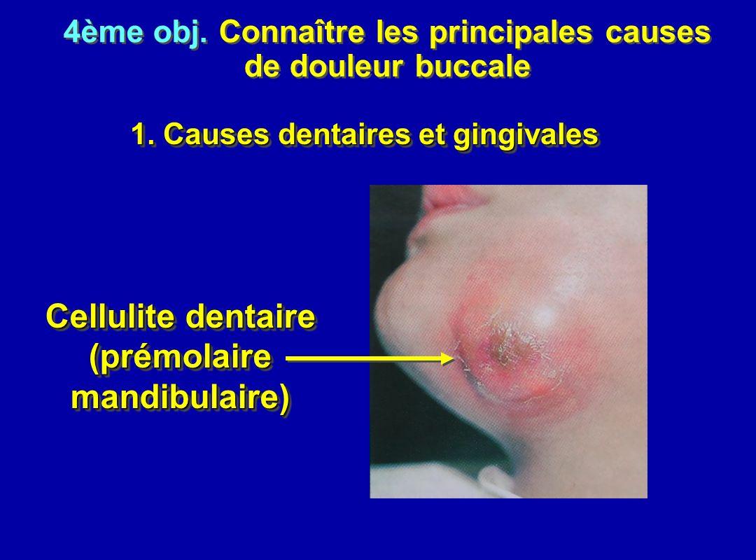 4ème obj. Connaître les principales causes de douleur buccale 4ème obj. Connaître les principales causes de douleur buccale 1. Causes dentaires et gin