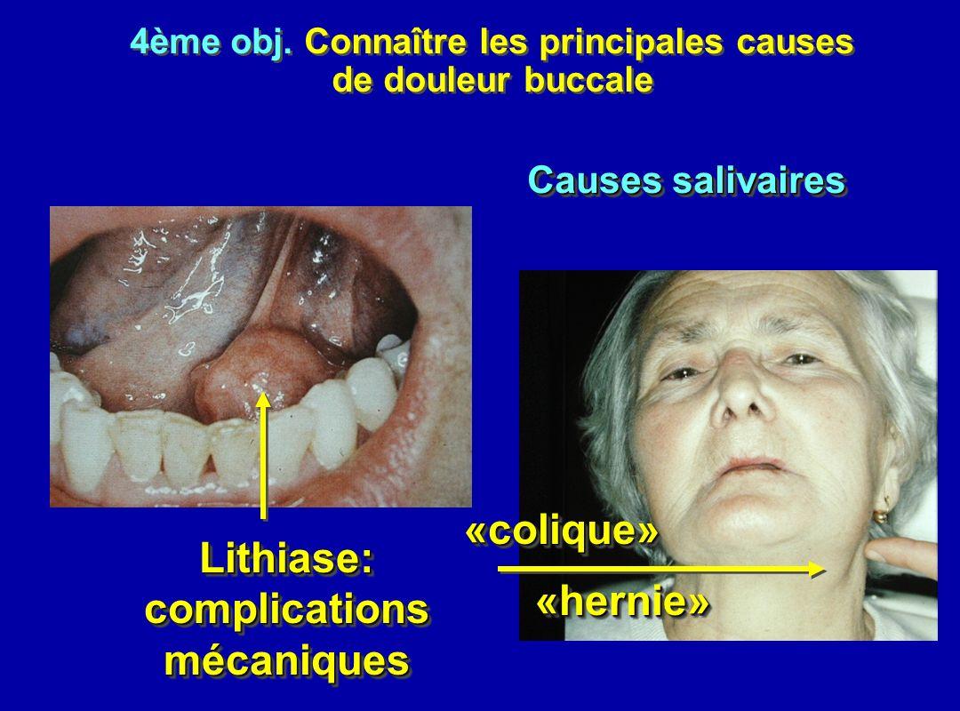 4ème obj. Connaître les principales causes de douleur buccale 4ème obj. Connaître les principales causes de douleur buccale Lithiase:complicationsméca