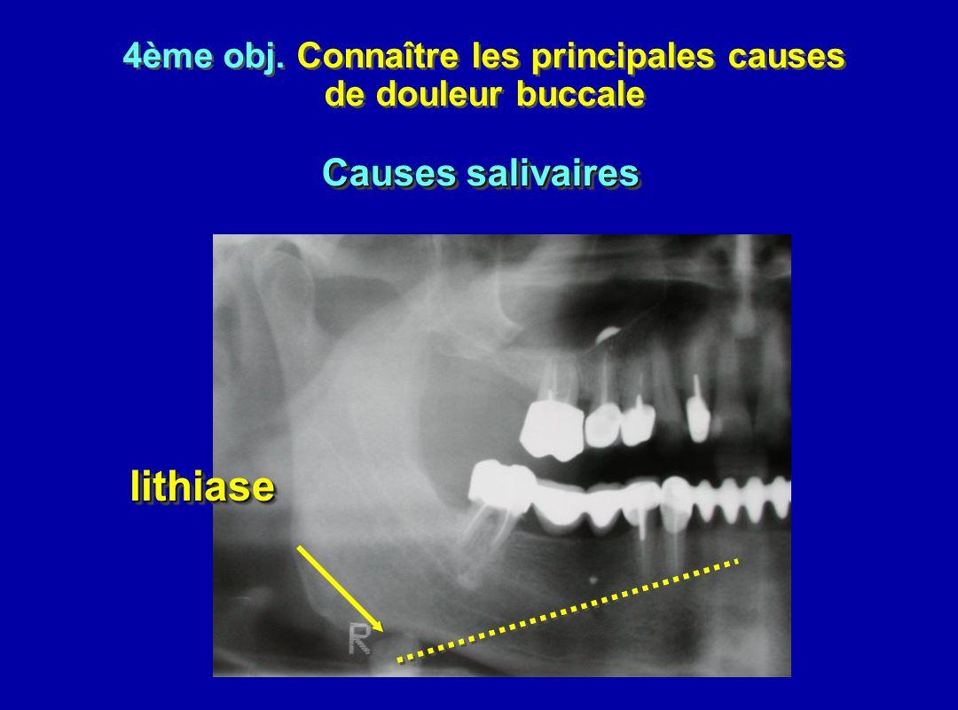 4ème obj. Connaître les principales causes de douleur buccale 4ème obj. Connaître les principales causes de douleur buccale lithiaselithiase Causes sa