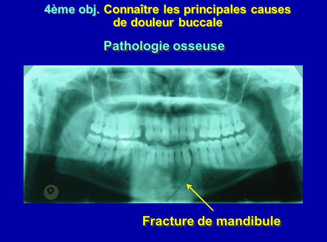 4ème obj. Connaître les principales causes de douleur buccale 4ème obj. Connaître les principales causes de douleur buccale Fracture de mandibule Path