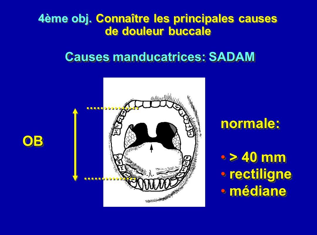 4ème obj. Connaître les principales causes de douleur buccale 4ème obj. Connaître les principales causes de douleur buccale OBOB normale: > 40 mm > 40