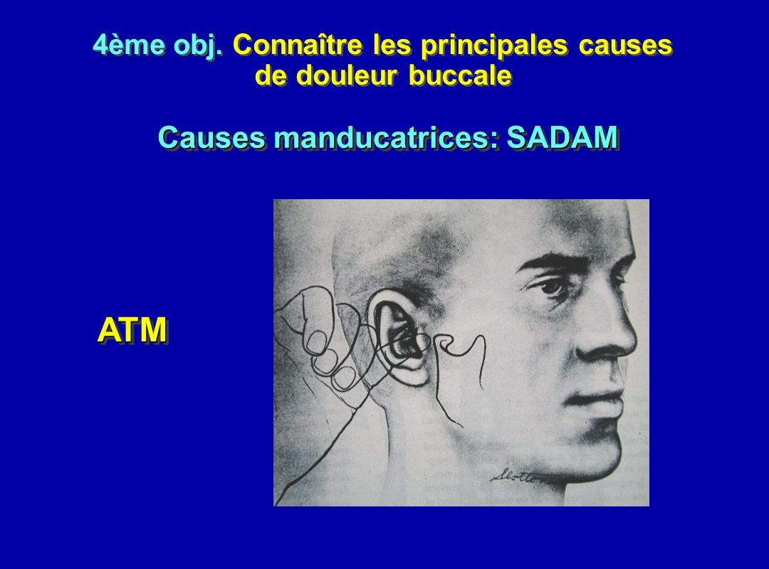 4ème obj. Connaître les principales causes de douleur buccale 4ème obj. Connaître les principales causes de douleur buccale ATMATM Causes manducatrice
