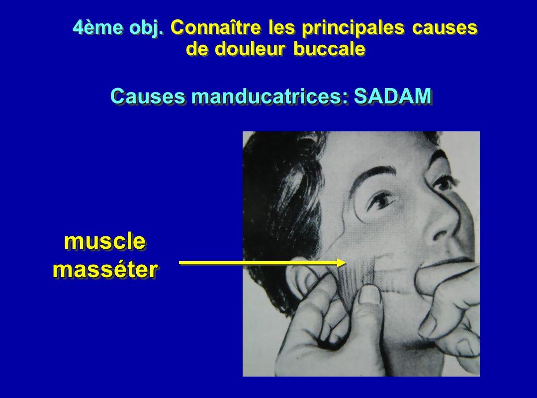 4ème obj. Connaître les principales causes de douleur buccale 4ème obj. Connaître les principales causes de douleur buccale musclemassétermusclemassét