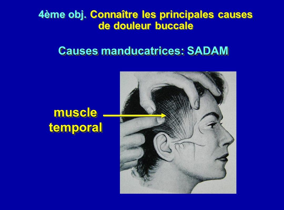 4ème obj. Connaître les principales causes de douleur buccale 4ème obj. Connaître les principales causes de douleur buccale muscletemporalmuscletempor