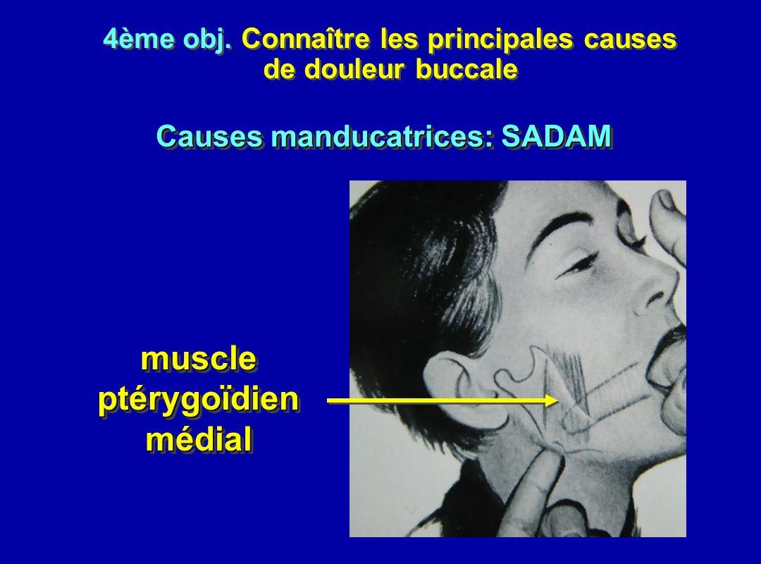 4ème obj. Connaître les principales causes de douleur buccale 4ème obj. Connaître les principales causes de douleur buccale muscleptérygoïdienmédialmu