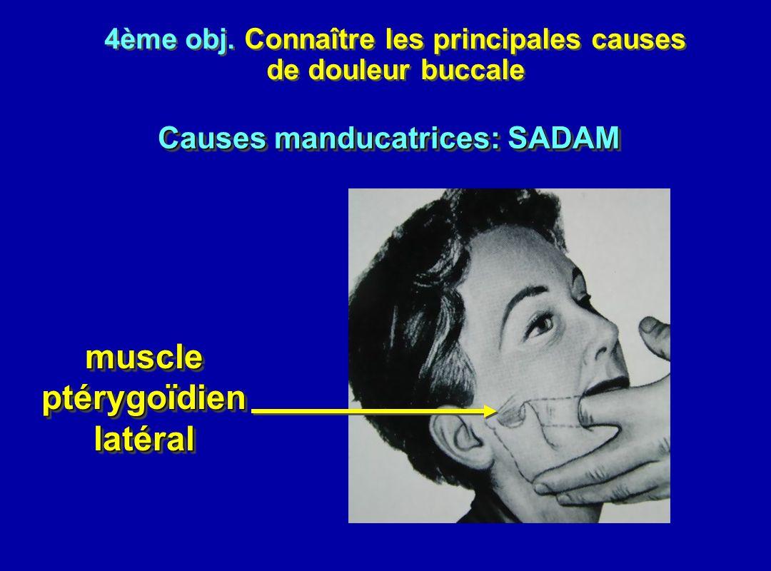 4ème obj. Connaître les principales causes de douleur buccale 4ème obj. Connaître les principales causes de douleur buccale muscleptérygoïdienlatéralm