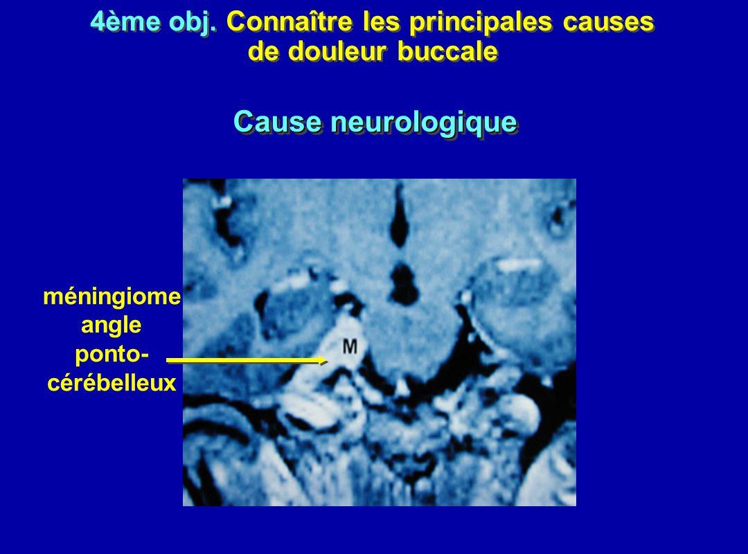 4ème obj. Connaître les principales causes de douleur buccale 4ème obj. Connaître les principales causes de douleur buccale méningiome angle ponto- cé