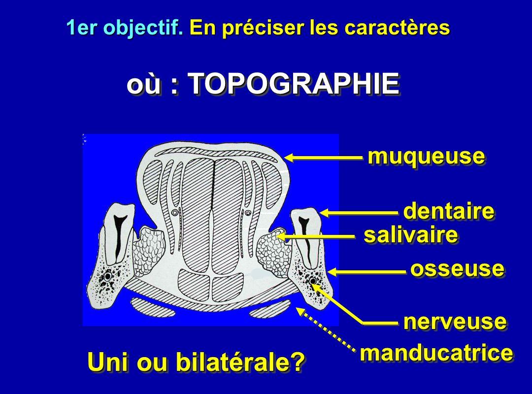 1er objectif. En préciser les caractères Uni ou bilatérale? où : TOPOGRAPHIE où : TOPOGRAPHIE muqueusemuqueuse dentairedentaire salivairesalivaire oss