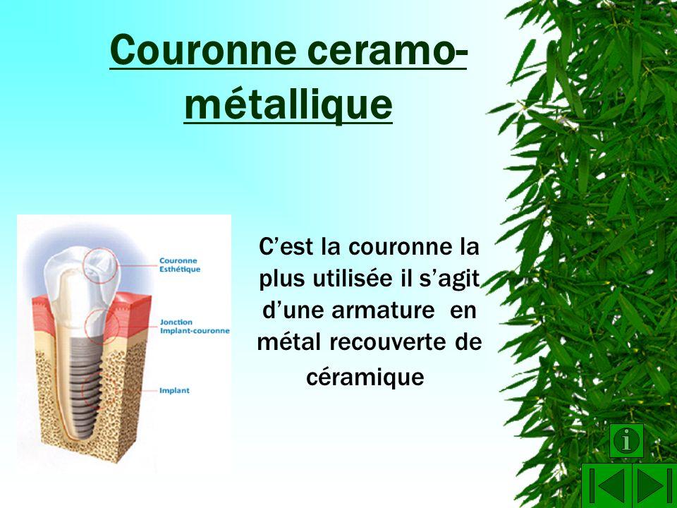 OBJET : Couronne ceramo- métallique M.M.B. D.P.6 (Découverte Professionnelle 6h)