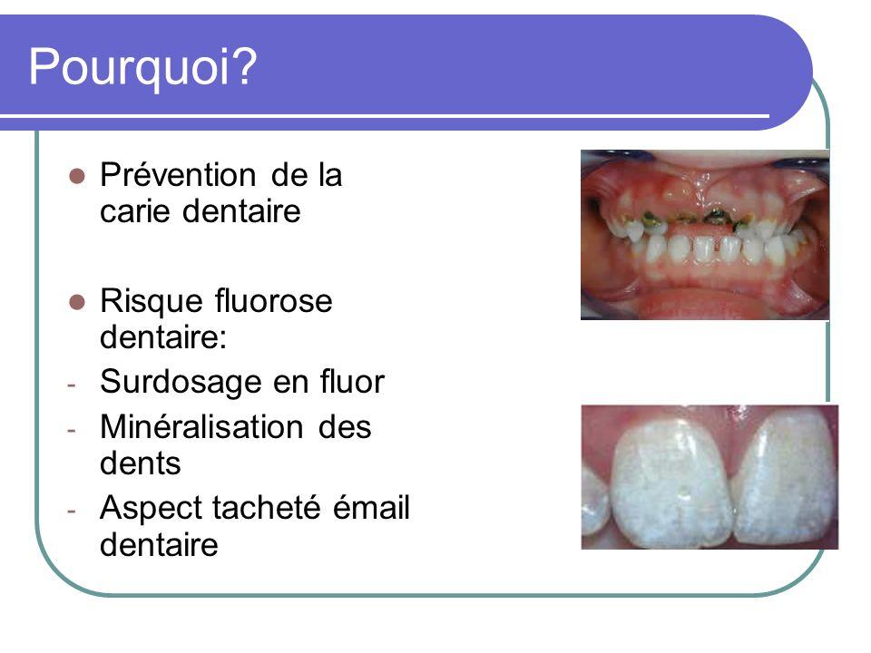 Pourquoi? Prévention de la carie dentaire Risque fluorose dentaire: - Surdosage en fluor - Minéralisation des dents - Aspect tacheté émail dentaire