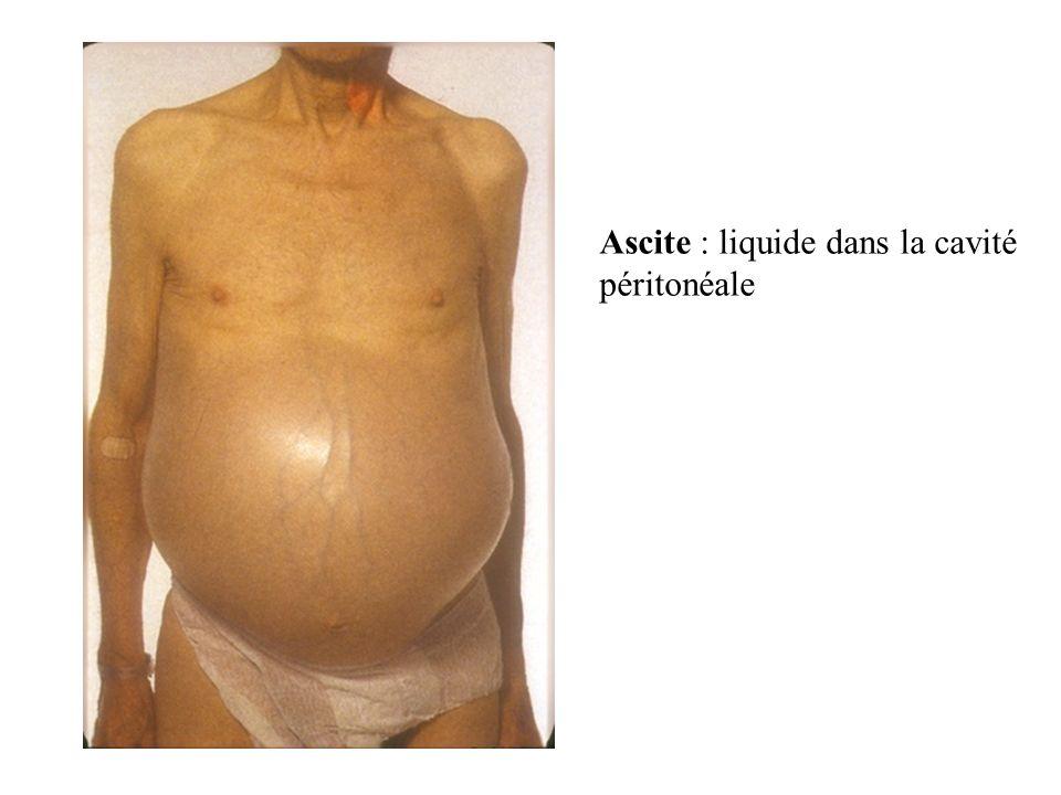 BOUCHE : coupe sagitale Sinus frontal pharynx Langue Palais osseux Larynx Palais mou oesophage choanes épiglotte