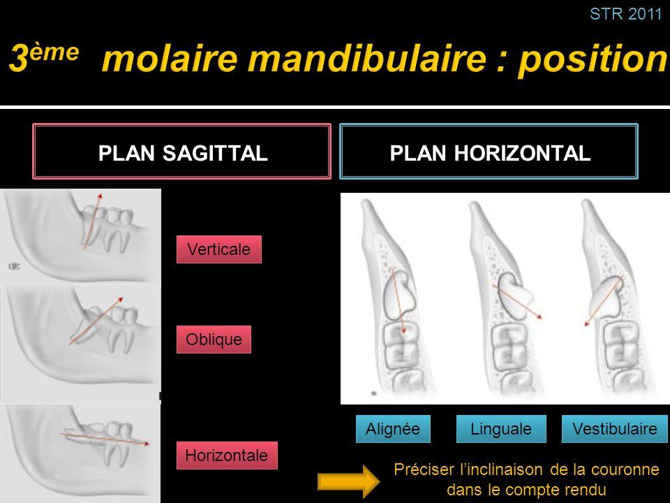 PLAN SAGITTALPLAN HORIZONTAL Alignée Linguale Vestibulaire Verticale Oblique Horizontale Préciser linclinaison de la couronne dans le compte rendu STR