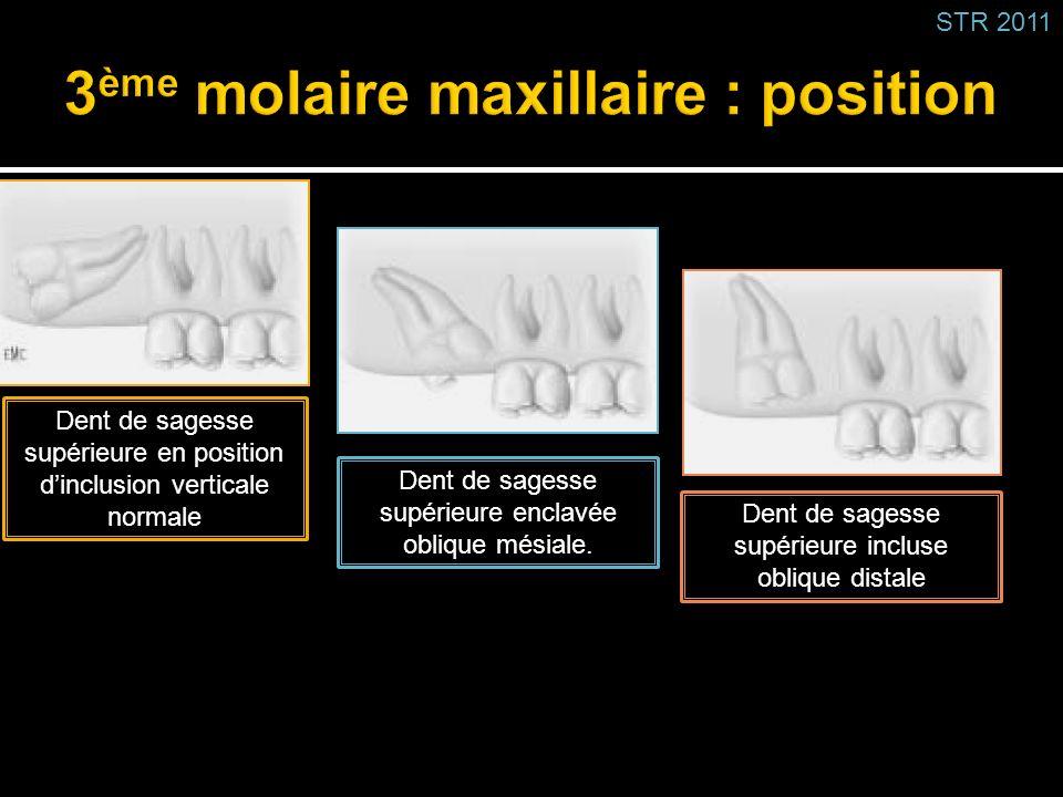 Dent de sagesse supérieure incluse oblique distale Dent de sagesse supérieure en position dinclusion verticale normale Dent de sagesse supérieure encl