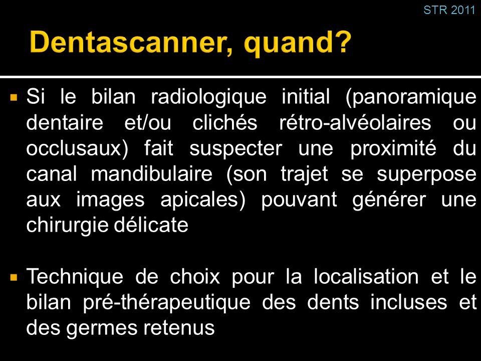 Si le bilan radiologique initial (panoramique dentaire et/ou clichés rétro-alvéolaires ou occlusaux) fait suspecter une proximité du canal mandibulair