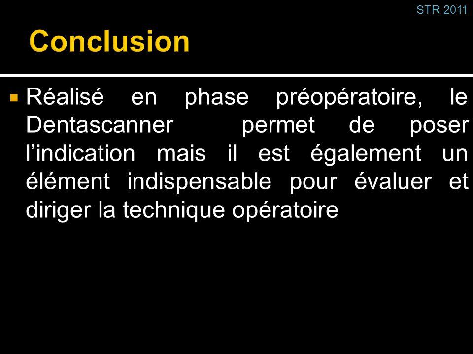 Réalisé en phase préopératoire, le Dentascanner permet de poser lindication mais il est également un élément indispensable pour évaluer et diriger la