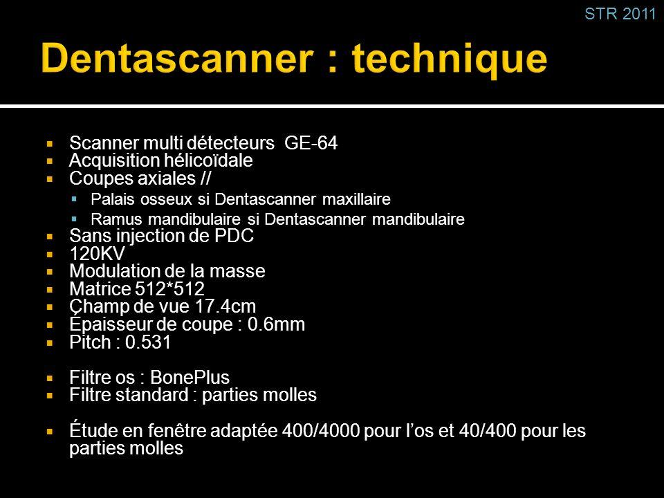 Scanner multi détecteurs GE-64 Acquisition hélicoïdale Coupes axiales // Palais osseux si Dentascanner maxillaire Ramus mandibulaire si Dentascanner m