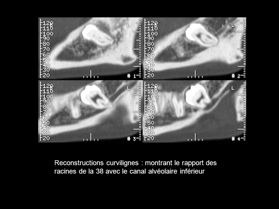 Lennart Flygare & Anders Öhman,Preoperative imaging procedures for lower wisdom teeth removal, Clin Oral Invest (2008) 12:291–302 Coupe transversale dun Dentascanner mandibulaire : Situation inter-radiculaire du canal mandibulaire gauche STR 2011