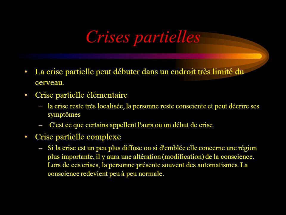 Crises partielles La crise partielle peut débuter dans un endroit très limité du cerveau.