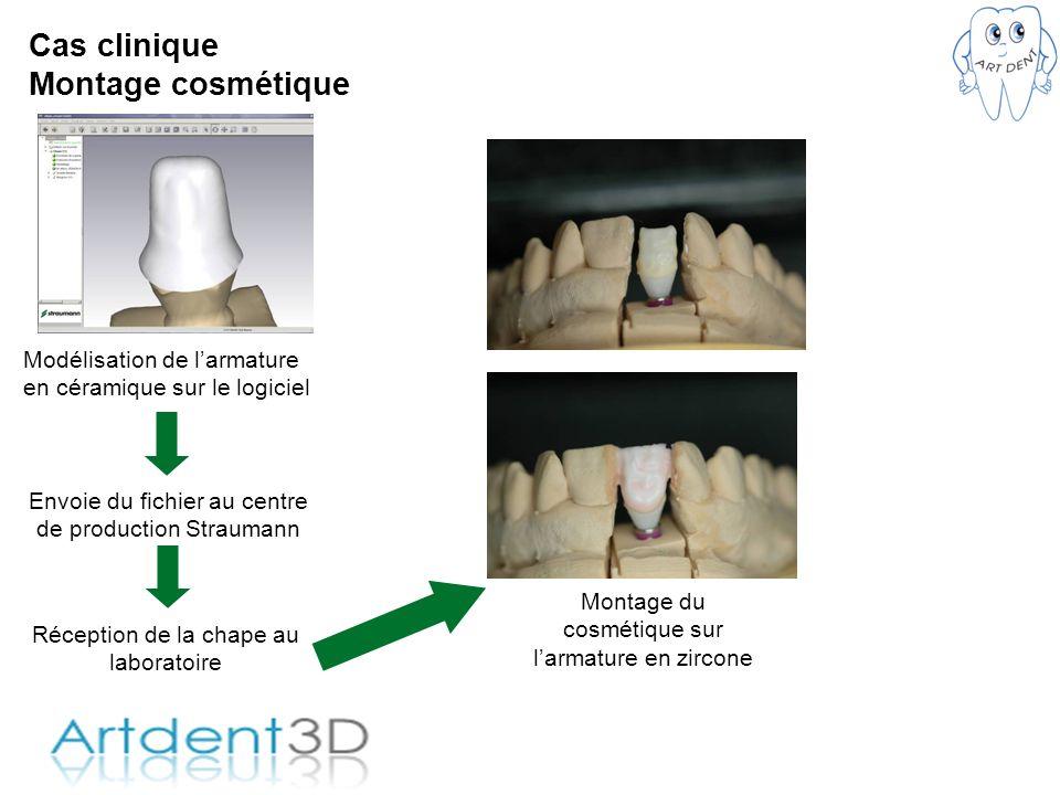 Cas clinique Montage cosmétique Modélisation de larmature en céramique sur le logiciel Envoie du fichier au centre de production Straumann Réception d