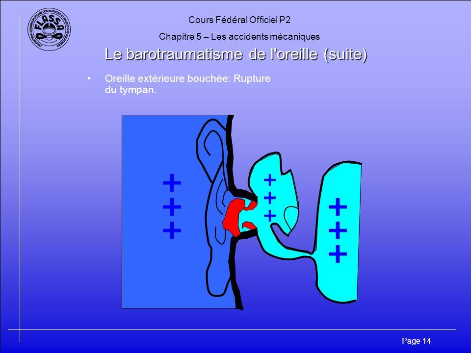 Cours Fédéral Officiel P2 Chapitre 5 – Les accidents mécaniques Page 14 Le barotraumatisme de l oreille (suite) Oreille extérieure bouchée: Rupture du tympan.