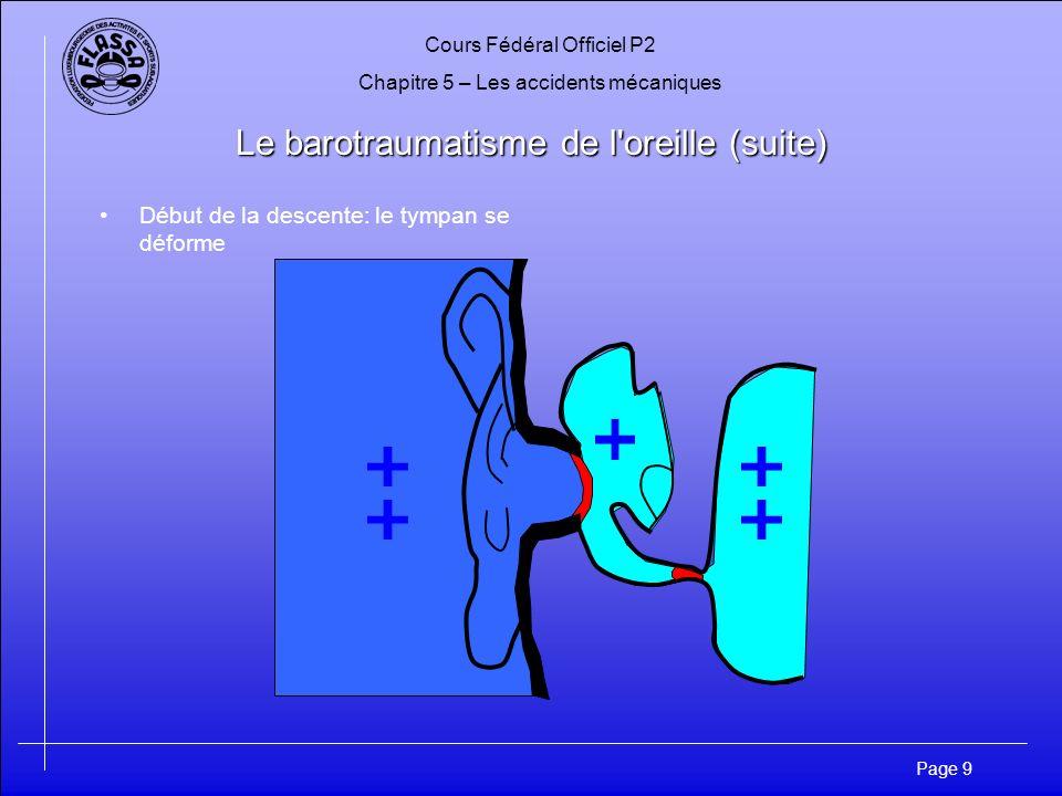 Cours Fédéral Officiel P2 Chapitre 5 – Les accidents mécaniques Page 9 Le barotraumatisme de l oreille (suite) Début de la descente: le tympan se déforme