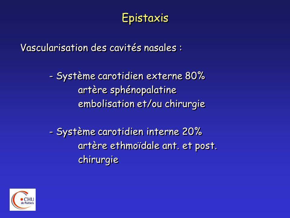 Epistaxis Vascularisation des cavités nasales : - Système carotidien externe 80% artère sphénopalatine embolisation et/ou chirurgie - Système carotidi
