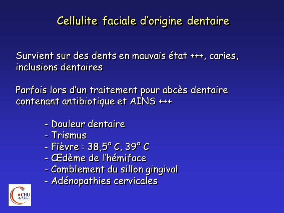 Cellulite faciale dorigine dentaire Survient sur des dents en mauvais état +++, caries, inclusions dentaires Parfois lors dun traitement pour abcès de