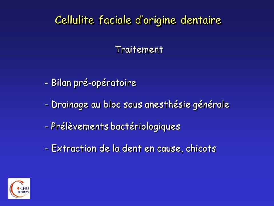 Cellulite faciale dorigine dentaire Traitement - Bilan pré-opératoire - Drainage au bloc sous anesthésie générale - Prélèvements bactériologiques - Ex