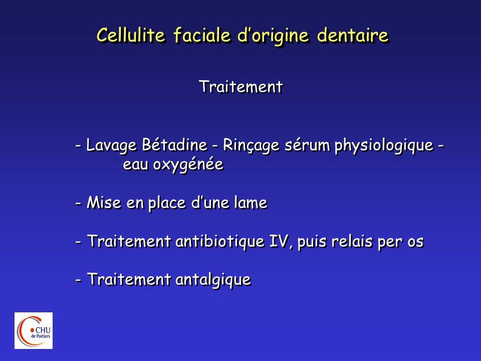 Cellulite faciale dorigine dentaire Traitement - Lavage Bétadine - Rinçage sérum physiologique - eau oxygénée - Mise en place dune lame - Traitement a