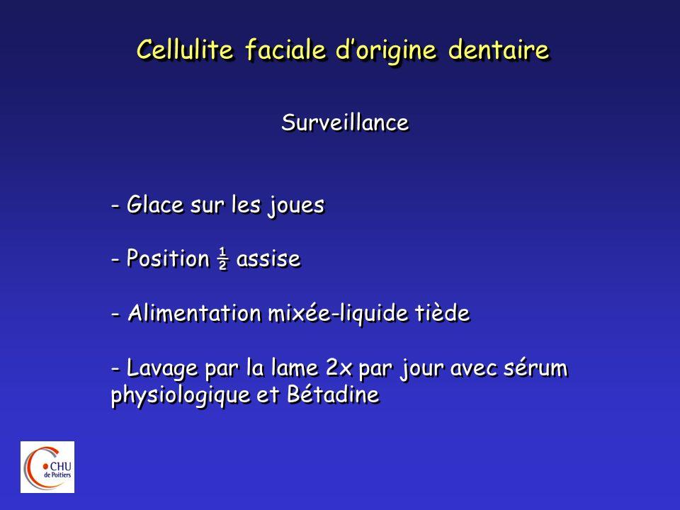 Cellulite faciale dorigine dentaire Surveillance - Glace sur les joues - Position ½ assise - Alimentation mixée-liquide tiède - Lavage par la lame 2x
