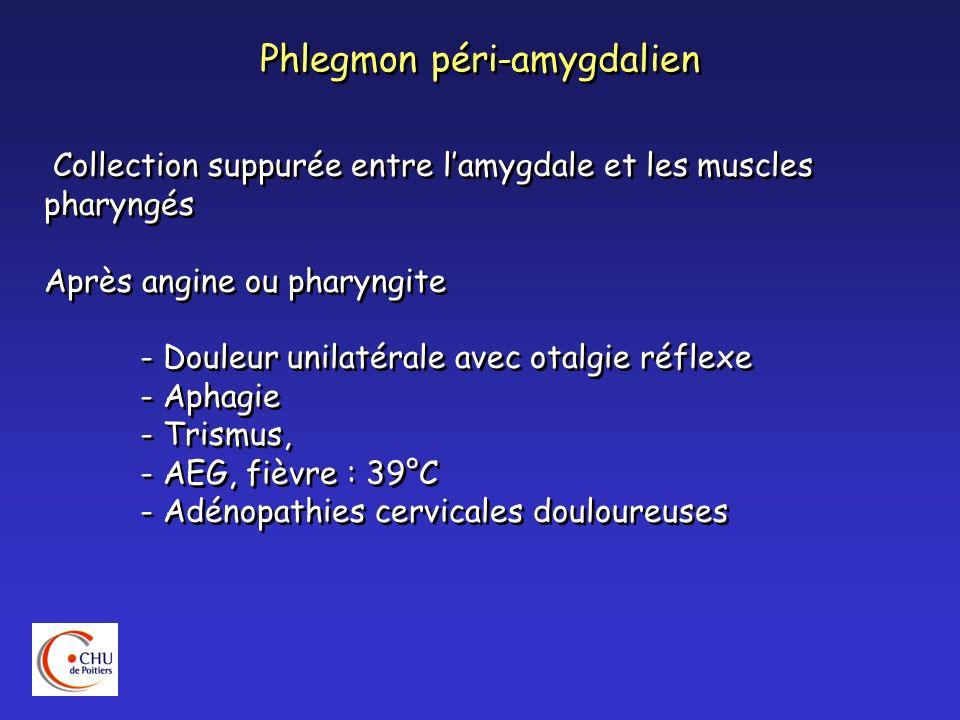 Phlegmon péri-amygdalien Collection suppurée entre lamygdale et les muscles pharyngés Après angine ou pharyngite - Douleur unilatérale avec otalgie ré
