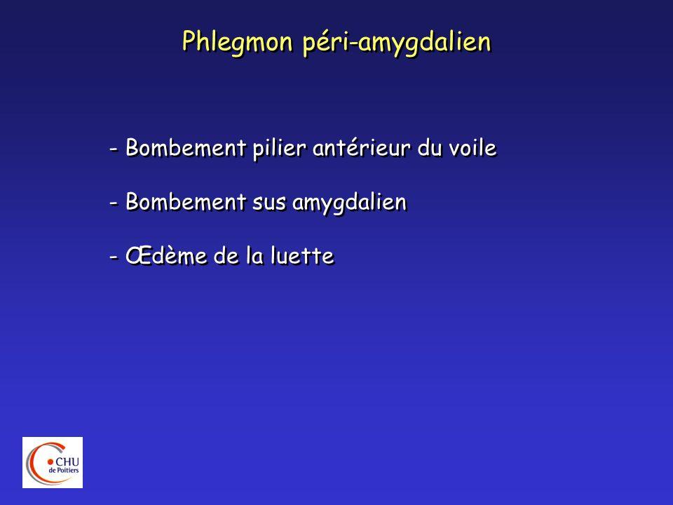 Phlegmon péri-amygdalien - Bombement pilier antérieur du voile - Bombement sus amygdalien - Œdème de la luette - Bombement pilier antérieur du voile -