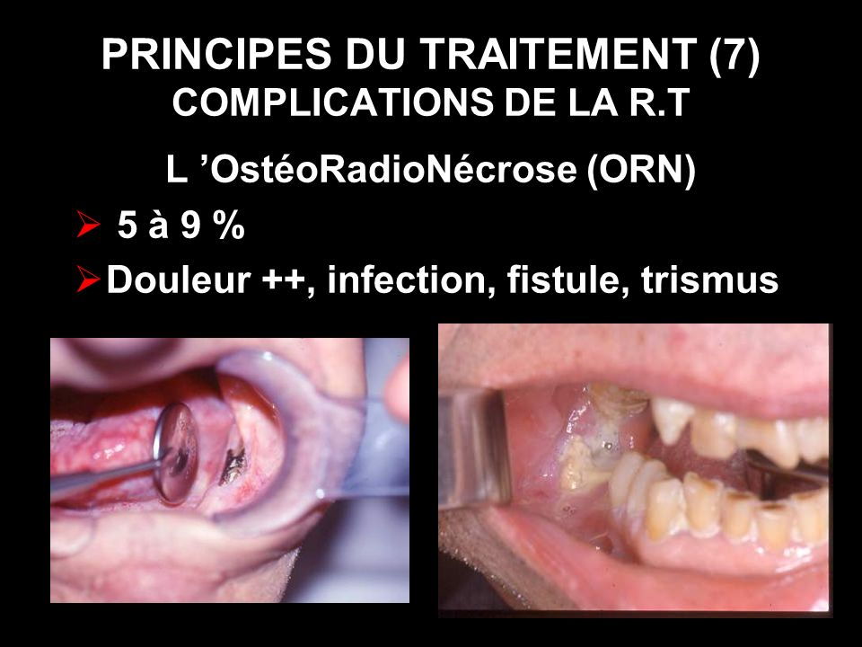PRINCIPES DU TRAITEMENT (7) COMPLICATIONS DE LA R.T L OstéoRadioNécrose (ORN) 5 à 9 % Douleur ++, infection, fistule, trismus