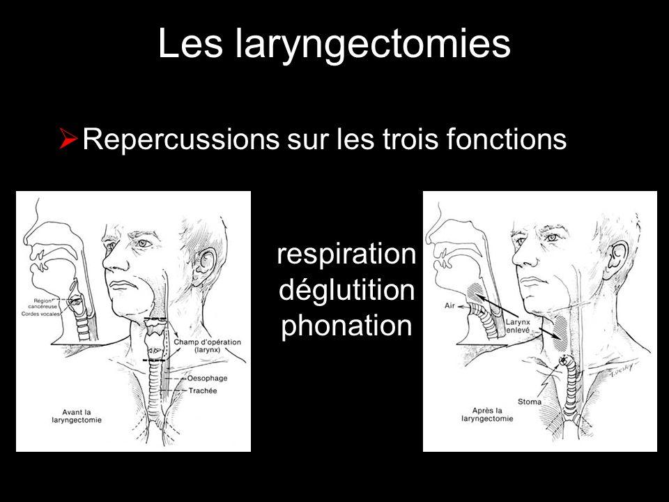 Les laryngectomies Repercussions sur les trois fonctions respiration déglutition phonation