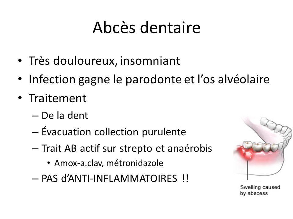 Abcès dentaire Très douloureux, insomniant Infection gagne le parodonte et los alvéolaire Traitement – De la dent – Évacuation collection purulente –
