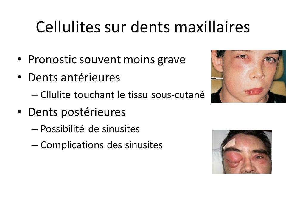 Cellulites sur dents maxillaires Pronostic souvent moins grave Dents antérieures – Cllulite touchant le tissu sous-cutané Dents postérieures – Possibi