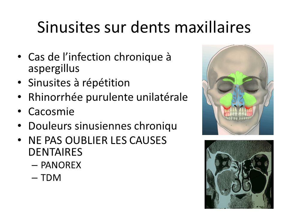 Sinusites sur dents maxillaires Cas de linfection chronique à aspergillus Sinusites à répétition Rhinorrhée purulente unilatérale Cacosmie Douleurs sinusiennes chroniqu NE PAS OUBLIER LES CAUSES DENTAIRES – PANOREX – TDM