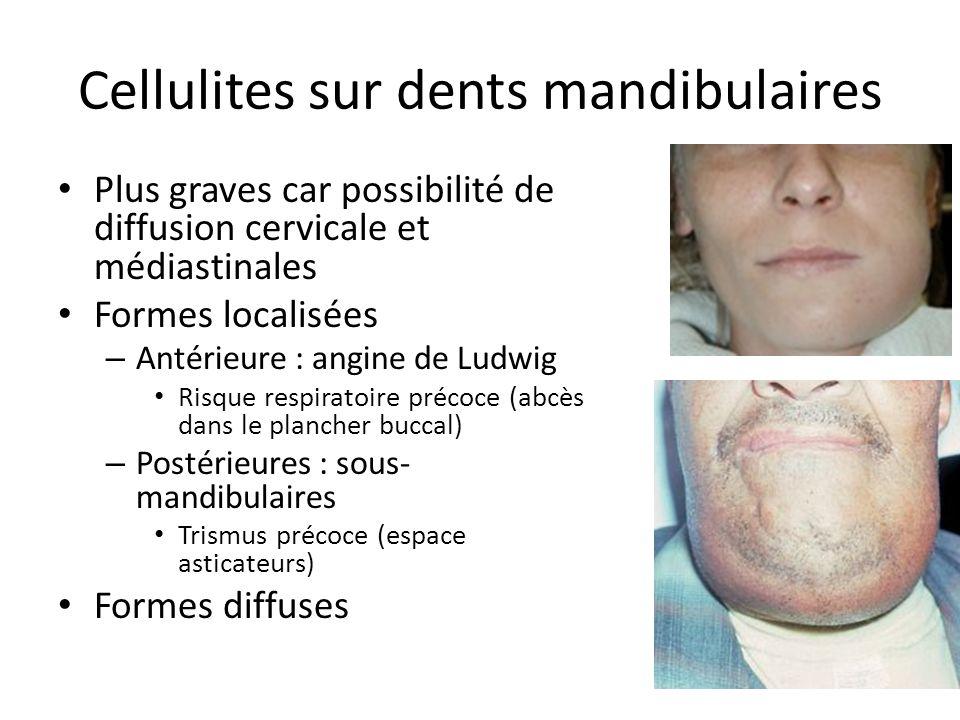Cellulites sur dents mandibulaires Plus graves car possibilité de diffusion cervicale et médiastinales Formes localisées – Antérieure : angine de Ludw