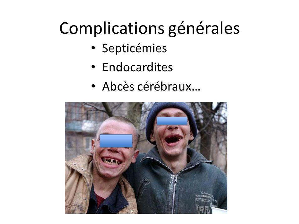 Complications générales Septicémies Endocardites Abcès cérébraux…