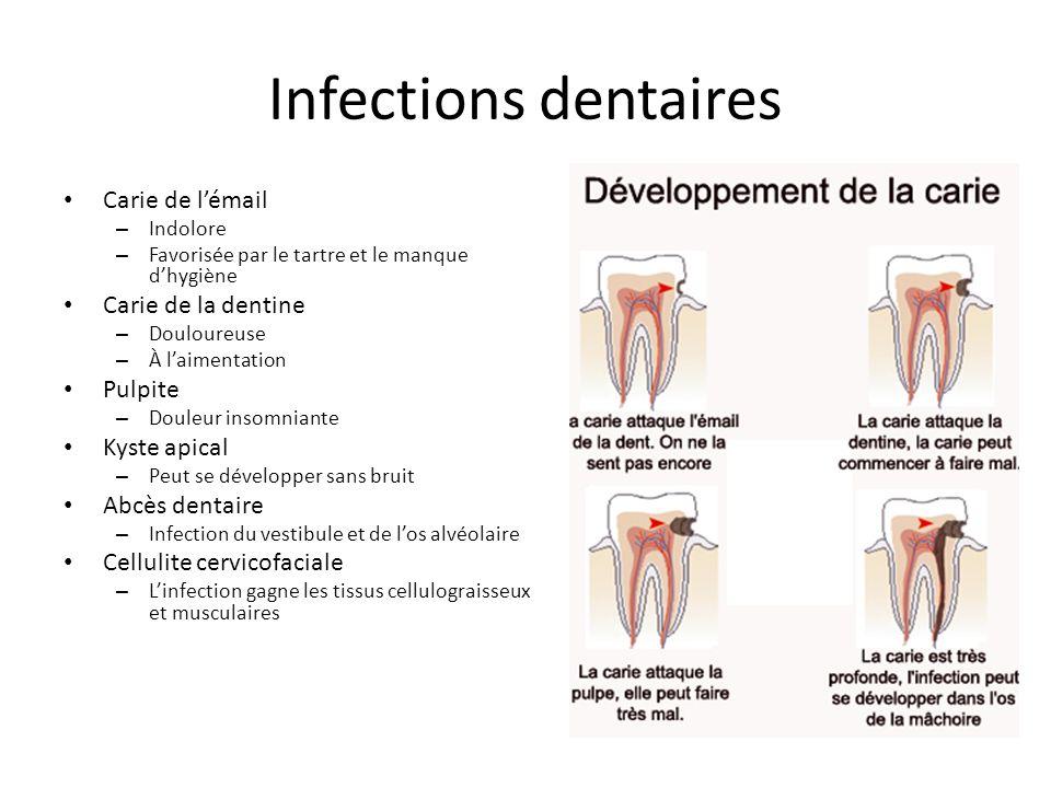 Infections dentaires Carie de lémail – Indolore – Favorisée par le tartre et le manque dhygiène Carie de la dentine – Douloureuse – À laimentation Pul