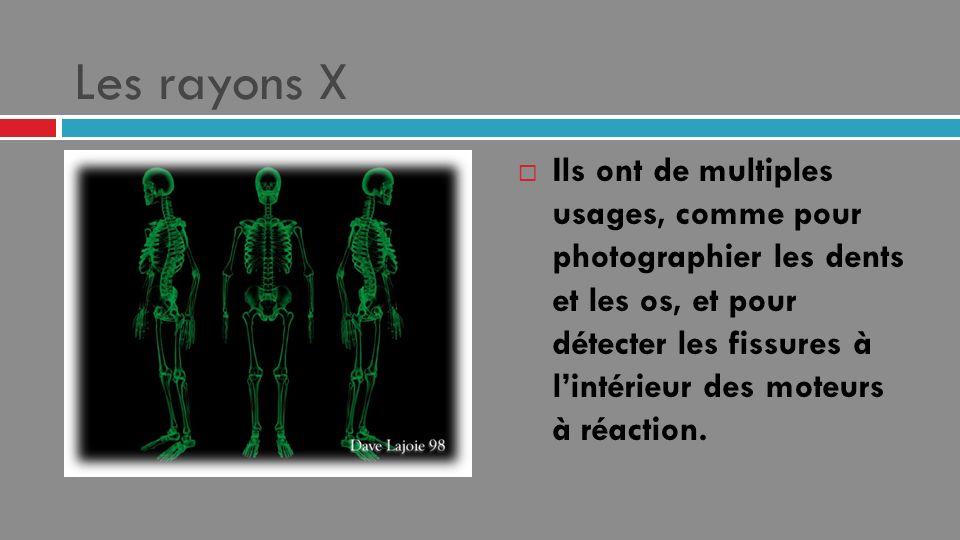 Les rayons X Ils ont de multiples usages, comme pour photographier les dents et les os, et pour détecter les fissures à lintérieur des moteurs à réact