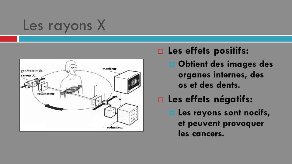 Les rayons X Les effets positifs: Obtient des images des organes internes, des os et des dents. Les effets négatifs: Les rayons sont nocifs, et peuven