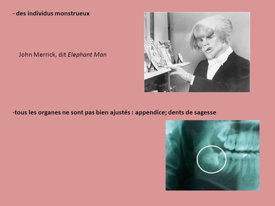 - des individus monstrueux John Merrick, dit Elephant Man -tous les organes ne sont pas bien ajustés : appendice; dents de sagesse