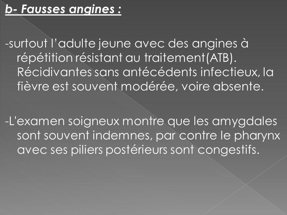 b- Fausses angines : -surtout ladulte jeune avec des angines à répétition résistant au traitement(ATB). Récidivantes sans antécédents infectieux, la f