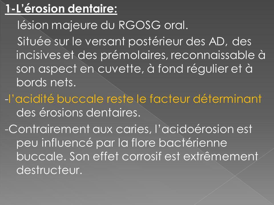 1-Lérosion dentaire: lésion majeure du RGOSG oral. Située sur le versant postérieur des AD, des incisives et des prémolaires, reconnaissable à son asp