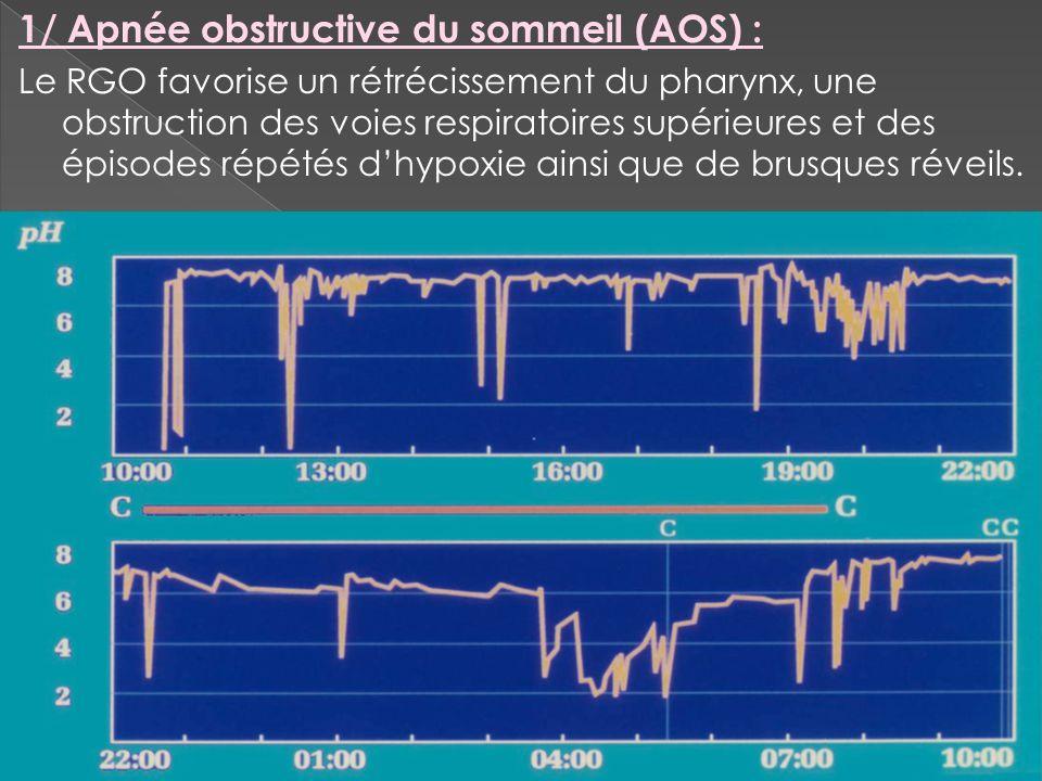 1/ Apnée obstructive du sommeil (AOS) : Le RGO favorise un rétrécissement du pharynx, une obstruction des voies respiratoires supérieures et des épiso