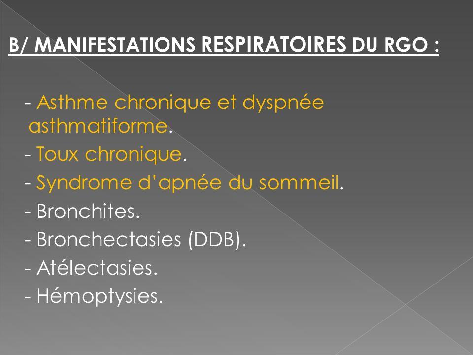 B/ MANIFESTATIONS RESPIRATOIRES DU RGO : - Asthme chronique et dyspnée asthmatiforme. - Toux chronique. - Syndrome dapnée du sommeil. - Bronchites. -