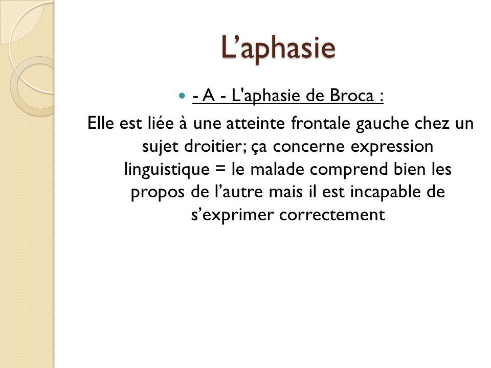 Laphasie - A - L'aphasie de Broca : Elle est liée à une atteinte frontale gauche chez un sujet droitier; ça concerne expression linguistique = le mala